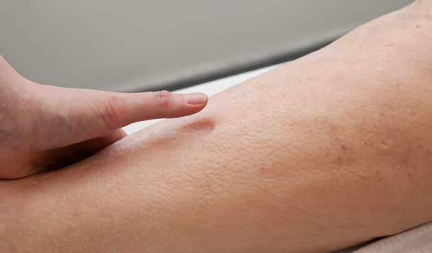 Oedeemtherapie for Behandeling oedeem